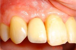 1-Couronne céramique sur implant(12)