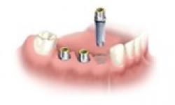 Mise en place de 3 implants