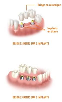 Absence de plusieurs dents