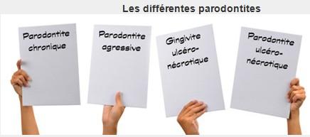 Les différentes parodontites